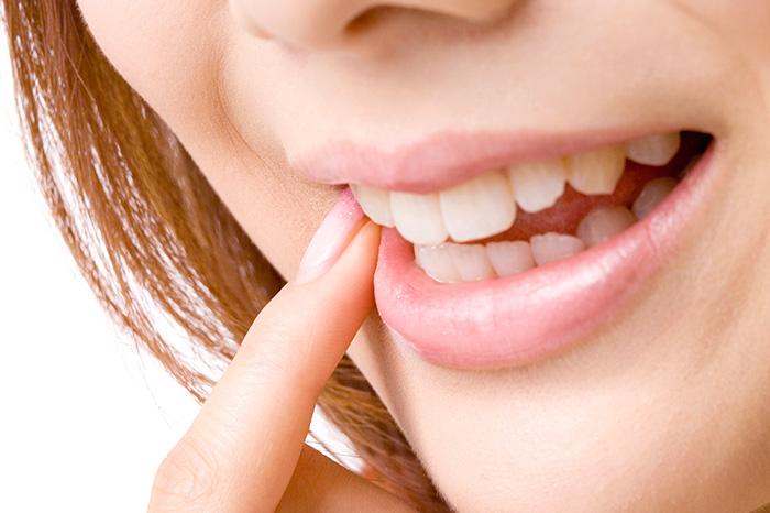前歯の部分矯正も行っています