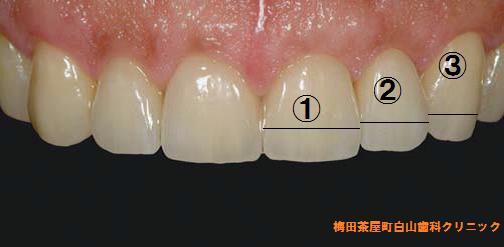 歯のゴールデンプロポーション